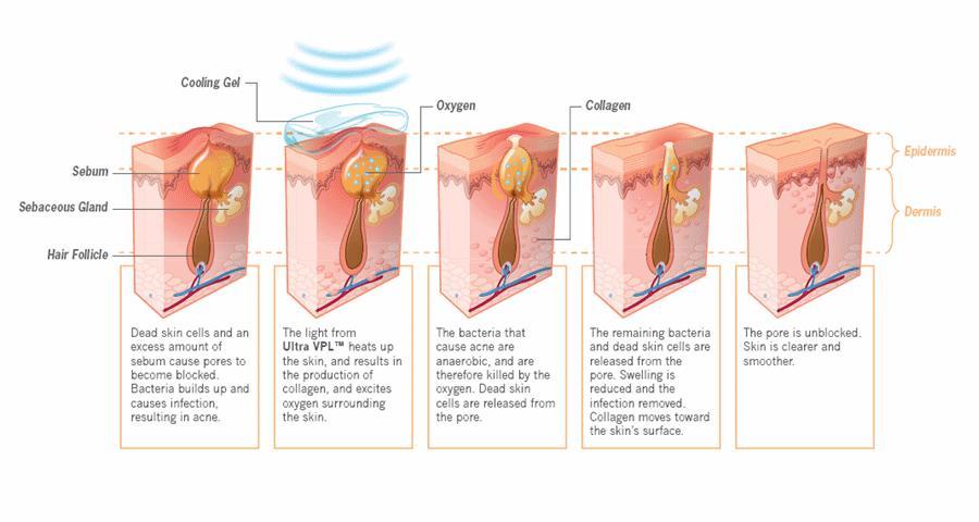 Perioral dermatitis: MedlinePlus Medical Encyclopedia